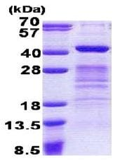 SDS-PAGE - Dppa4 protein (His tag) (ab167860)