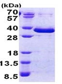 SDS-PAGE - FAM84A protein (His tag) (ab167861)