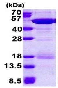 SDS-PAGE - Nck beta protein (His tag) (ab167862)