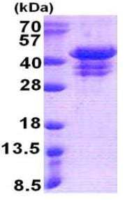 SDS-PAGE - UFD1L protein (His tag) (ab167871)