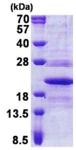 SDS-PAGE - TMP21 protein (His tag) (ab167877)