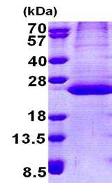 SDS-PAGE - PPPDE2 protein (His tag) (ab167878)