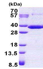 SDS-PAGE - RARRES1 protein (His tag) (ab167883)