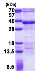 SDS-PAGE - RFXANK protein (His tag) (ab167884)