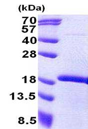 SDS-PAGE - MEOX2 protein (His tag) (ab167892)