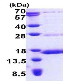 SDS-PAGE - NDUFS6 protein (His tag) (ab167896)