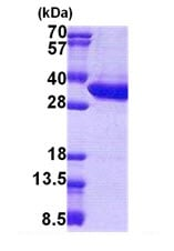 SDS-PAGE - Malectin protein (His tag) (ab167903)