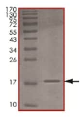 SDS-PAGE - MMS2 protein (His tag) (ab167920)