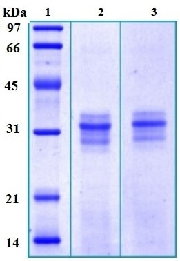SDS-PAGE - ATP6IP2 protein (His tag) (ab167955)