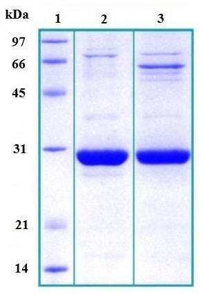 SDS-PAGE - Tppp protein (His tag) (ab167958)