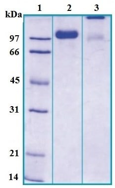 SDS-PAGE - Uromucoid protein (ab167968)