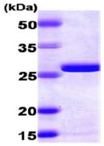 SDS-PAGE - AK2 protein (ab167993)