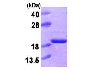 SDS-PAGE - Acid Phosphatase protein (Active) (ab168008)