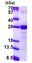 SDS-PAGE - LY6G6F protein (Tagged-His Tag) (ab168082)