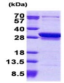 SDS-PAGE - CCDC25 protein (His tag) (ab168088)