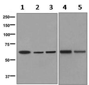 Western blot - Anti-CLPX antibody [EP8772] (ab168338)