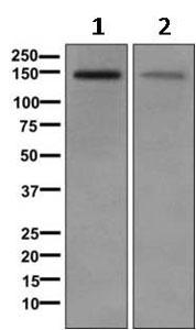 Western blot - Anti-DLGAP4 antibody [EPR10888] (ab168339)