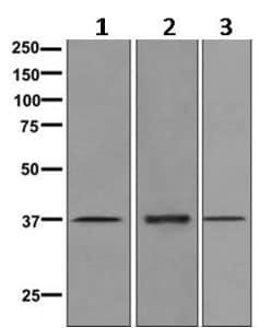 Western blot - Anti-Kallikrein 5 antibody [EPR9278] (ab168340)