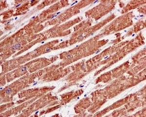 Immunohistochemistry (Formalin/PFA-fixed paraffin-embedded sections) - Anti-ACAT1 antibody [EPR10359] (ab168342)