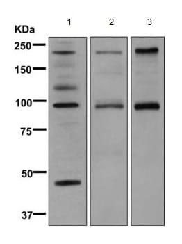 Western blot - Anti-C4b antibody [EPR11203] (ab168358)