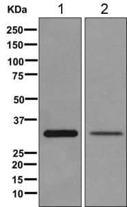 Western blot - Anti-TST antibody [EPR11645(B)] (ab168359)