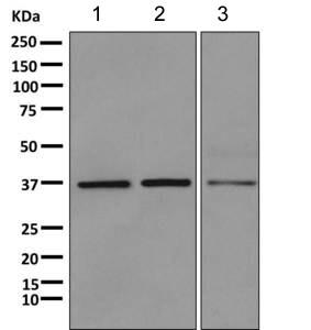 Western blot - Anti-HOXC13 antibody [EPR5626] (ab168368)