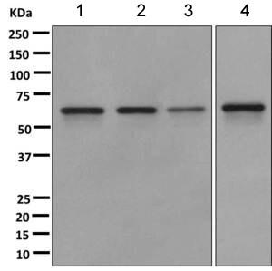 Western blot - Anti-CDKAL1 antibody [EPR11621] (ab168390)