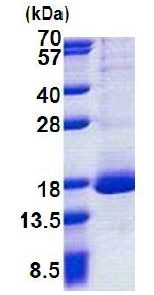 SDS-PAGE - RPL30 protein (His tag) (ab168718)