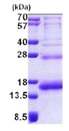 SDS-PAGE - RPS19 protein (His tag) (ab168720)