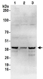 Western blot - Anti-SLBP antibody (ab168822)