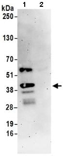 Immunoprecipitation - Anti-SLBP antibody (ab168822)
