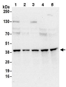 Western blot - Anti-SEC13L1 antibody (ab168824)
