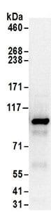 Immunoprecipitation - Anti-NKRF antibody (ab168829)