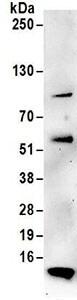 Immunoprecipitation - Anti-TIMM8A antibody (ab168835)
