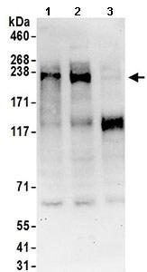 Western blot - Anti-TNRC6C antibody (ab168838)