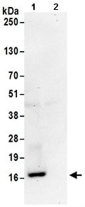 Immunoprecipitation - Anti-RPS19 antibody (ab168840)