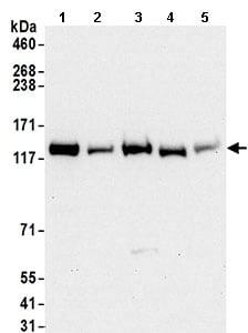 Western blot - Anti-Exportin-5 antibody (ab168844)
