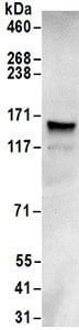 Immunoprecipitation - Anti-GRIP1 antibody (ab168848)