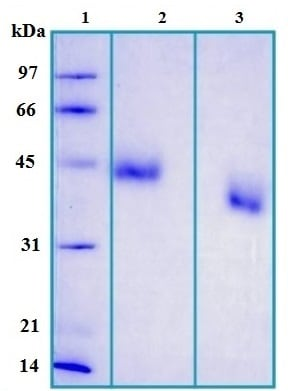 SDS-PAGE - Alpha 1 Acid Glycoprotein protein (Human) (ab168874)