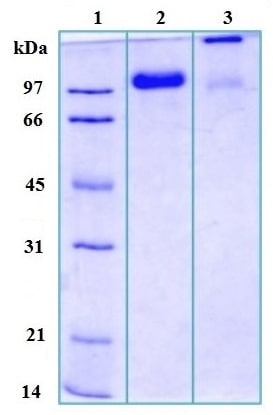 SDS-PAGE - Uromucoid protein (ab168879)