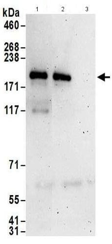 Immunoprecipitation - Anti-ZNF423 antibody (ab169096)