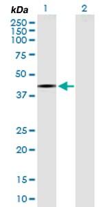 Western blot - Anti-Raptor antibody (ab169506)