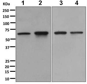 Western blot - Anti-CDKAL1 antibody [EPR11621-26] (ab169531)