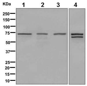 Western blot - Anti-Apc6 antibody [EPR11167] (ab169537)