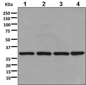 Western blot - Anti-RPL8 antibody [EPR11630] (ab169538)