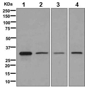 Western blot - Anti-HSD17B8 antibody [EPR12085(B)] (ab169542)