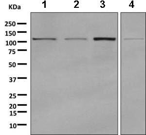 Western blot - Anti-GART antibody [EPR11622] (ab169550)