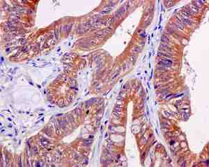 Immunohistochemistry (Formalin/PFA-fixed paraffin-embedded sections) - Anti-GART antibody [EPR11622] (ab169550)