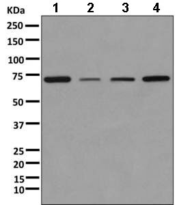 Western blot - Anti-KBTBD11 antibody [EPR10056(2)(B)] (ab169551)