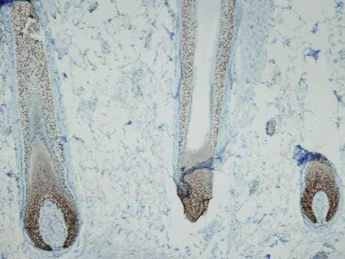 Immunohistochemistry (Formalin/PFA-fixed paraffin-embedded sections) - Anti-p63 antibody [I27-I] (ab169707)